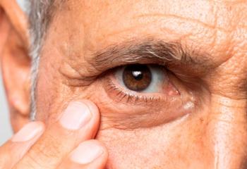 Tanıda geç kalınırsa glokom körlüğe neden oluyor